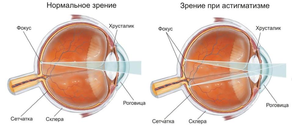 Восстановление зрения без операции жданова