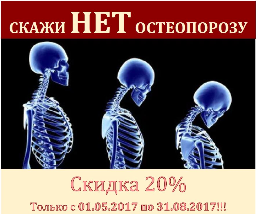 Акция на программу по диагностике остеопороза. Только до 31.08.2017!