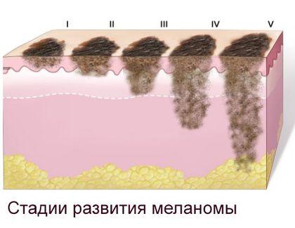 Ультразвуковое исследование кожи и ногтей
